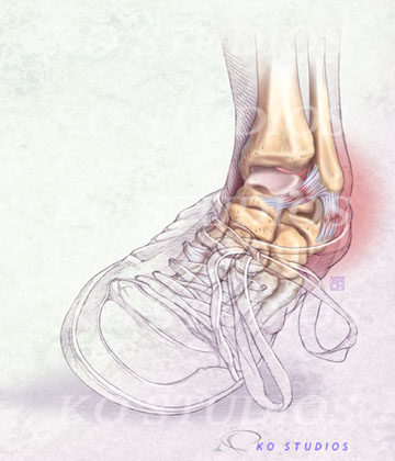 Ankle Sprain in shoes