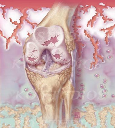 Rheumatoid Arthritis of the Knee