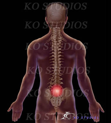 Back Pain with Dark Background