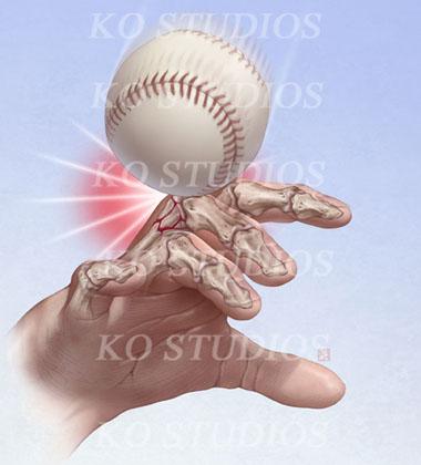 Baseball Hand Fractures
