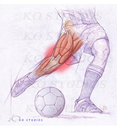 Quadriceps Injury