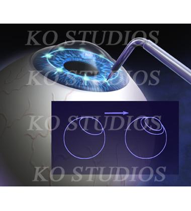 CK Eye