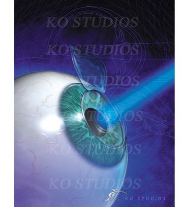 Lasik Eye Treatment