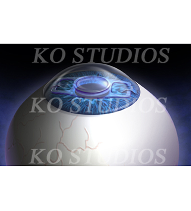 Verisyes intaocular lens