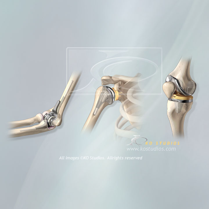 Orthopedic Implants DJO