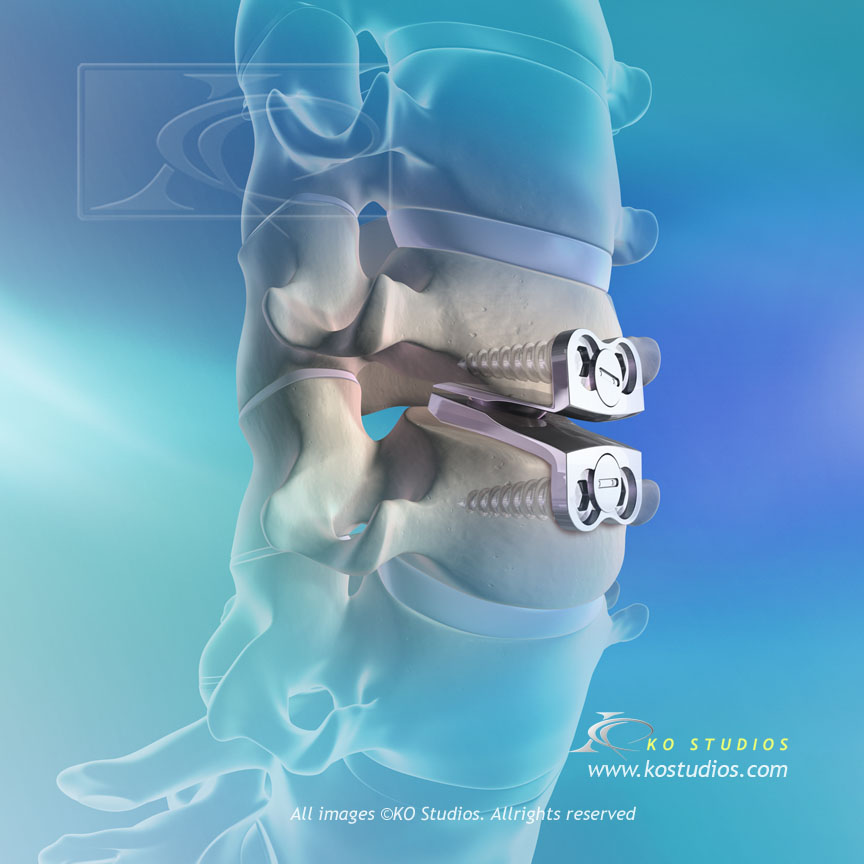 Prestige Implant in Cervical Disc Repair