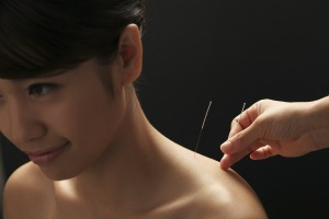 acupuncture canberra