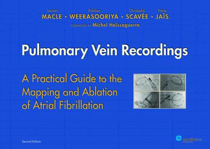 Pulmonary Vein Recordings 2nd Edition