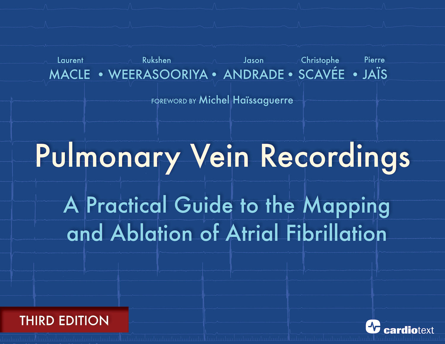 Pulmonary Vein Recordings: A Practical Guide to the Mapping and Ablation of Atrial Fibrillation - 3rd Edition