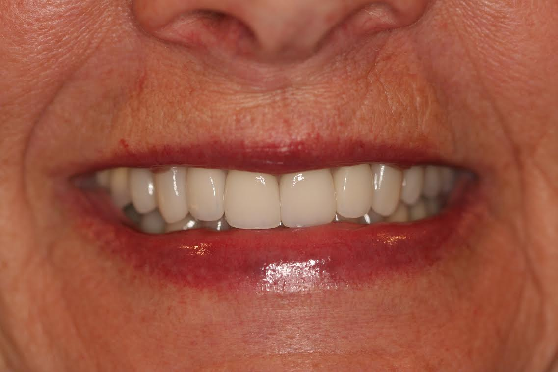 Dr. Hill's patient, J.F. after restoration with all porcelain veneers