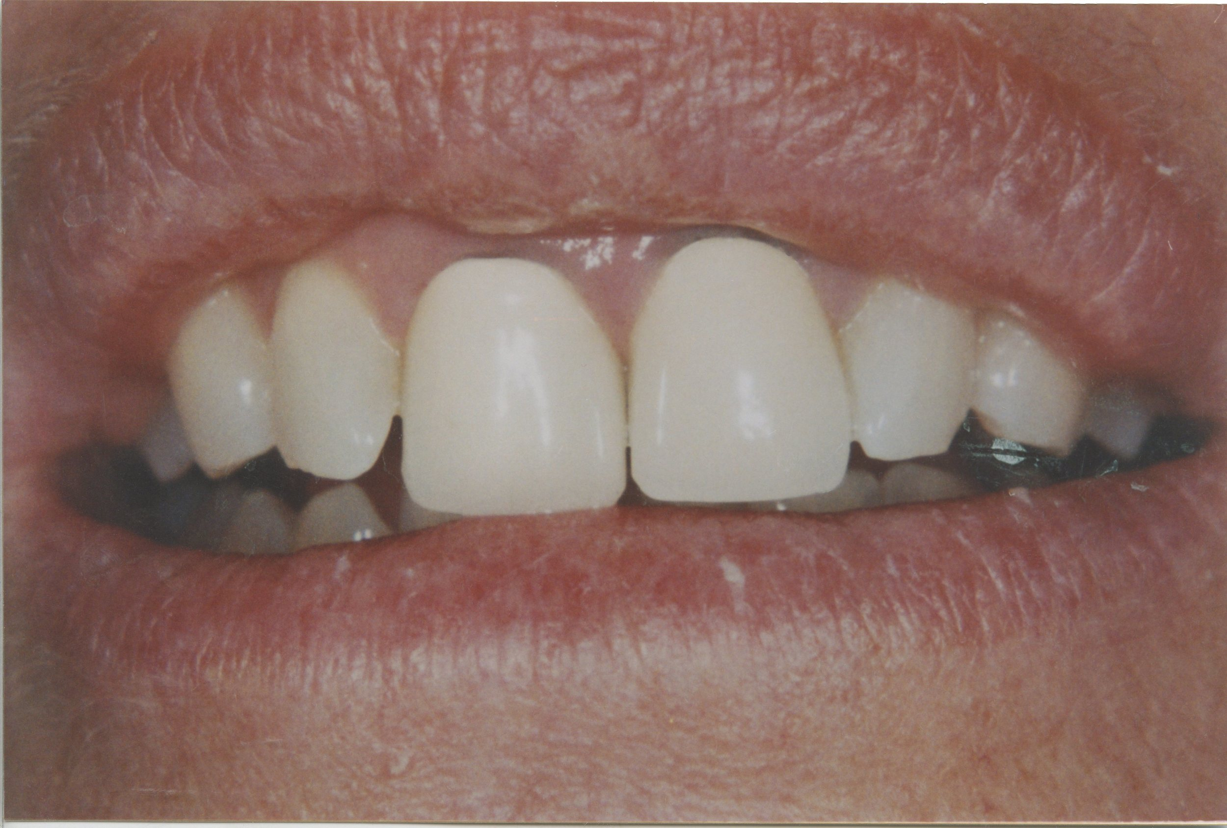 J.P. had some old PFM's (Porcelain Fused to Metal crowns) that we replaced with nice all porcelain crowns