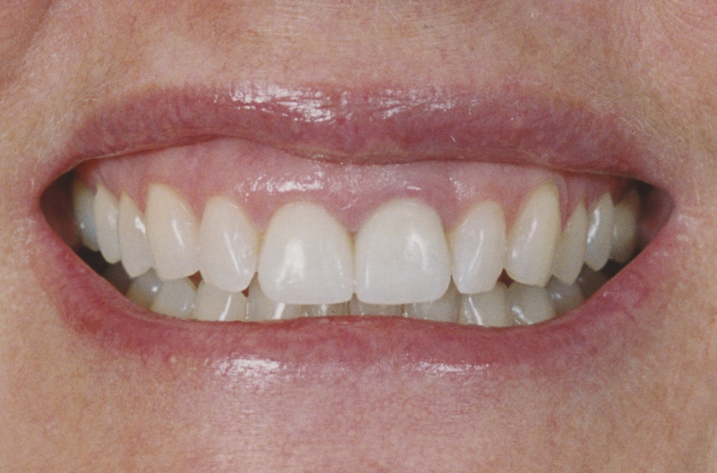 J.P. with some beautiful new, natural looking porcelain crowns