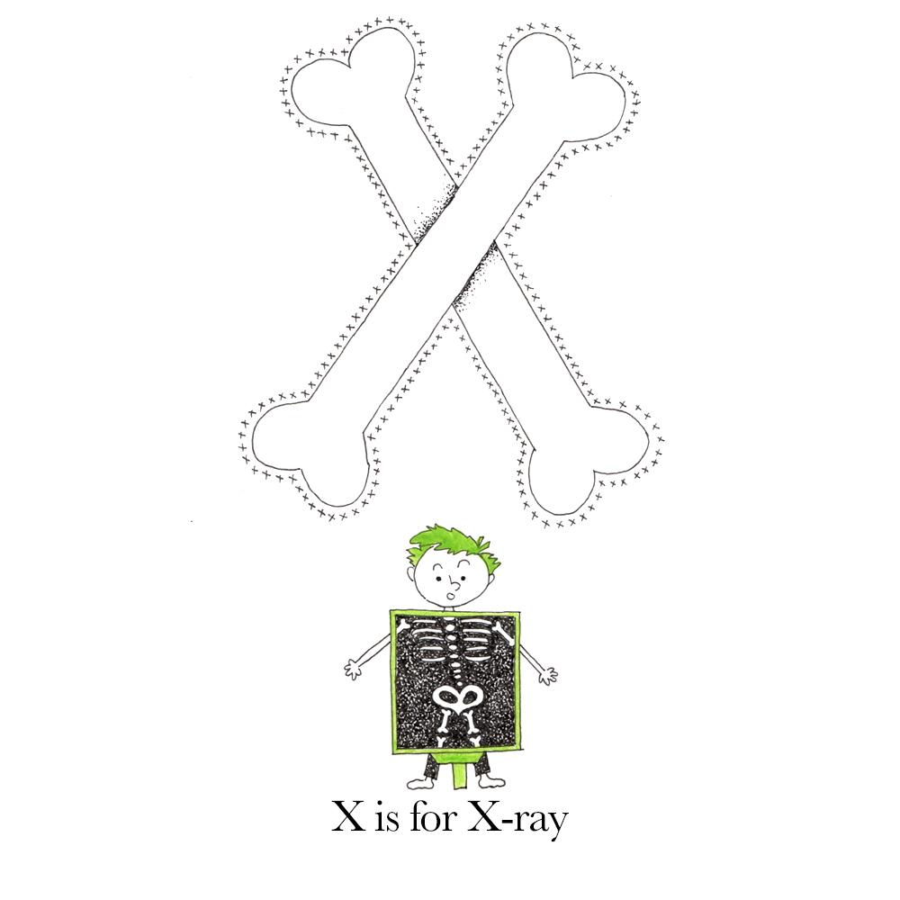 X_blog.jpg