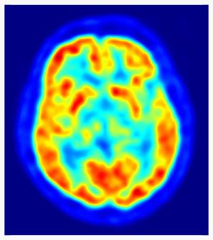 PET scan, public domain, by Jens Langner