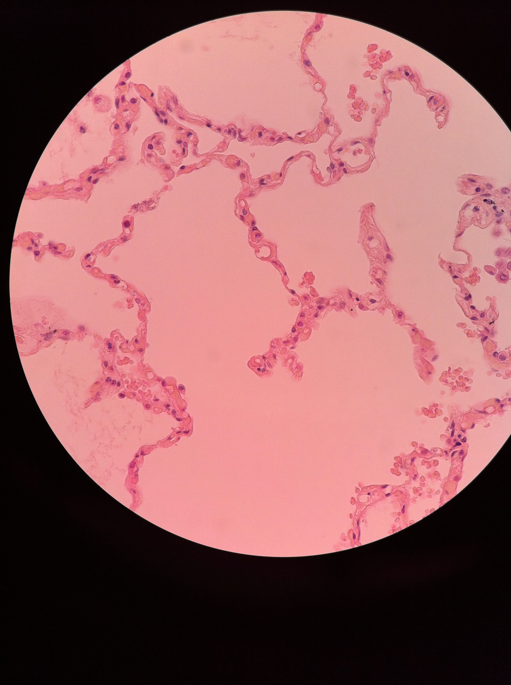 simple squamous (lung) 400X