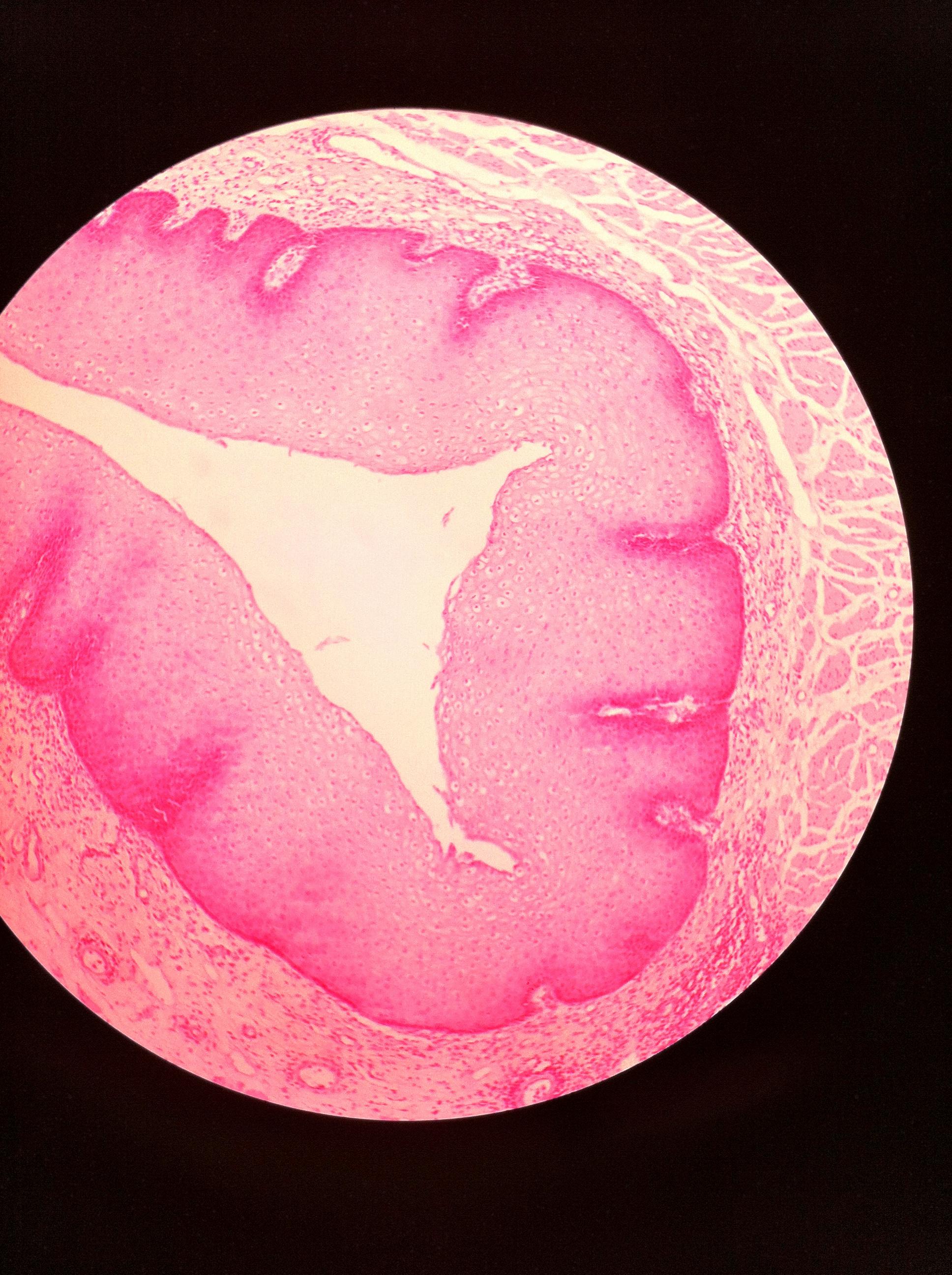 stratified squamos (esophagus) 100X