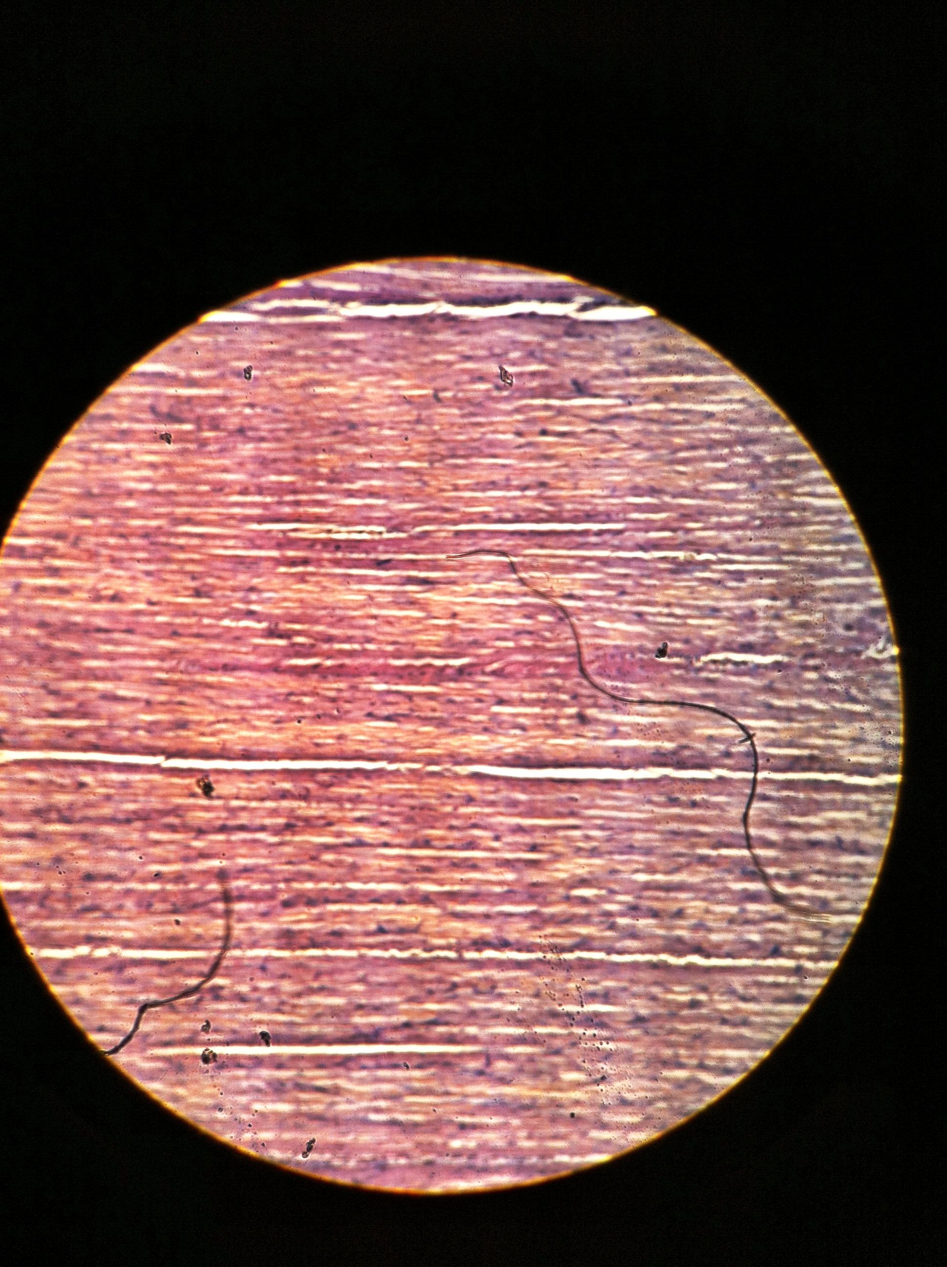 dense regular (white fibrous tissue), Total Mag: 100X