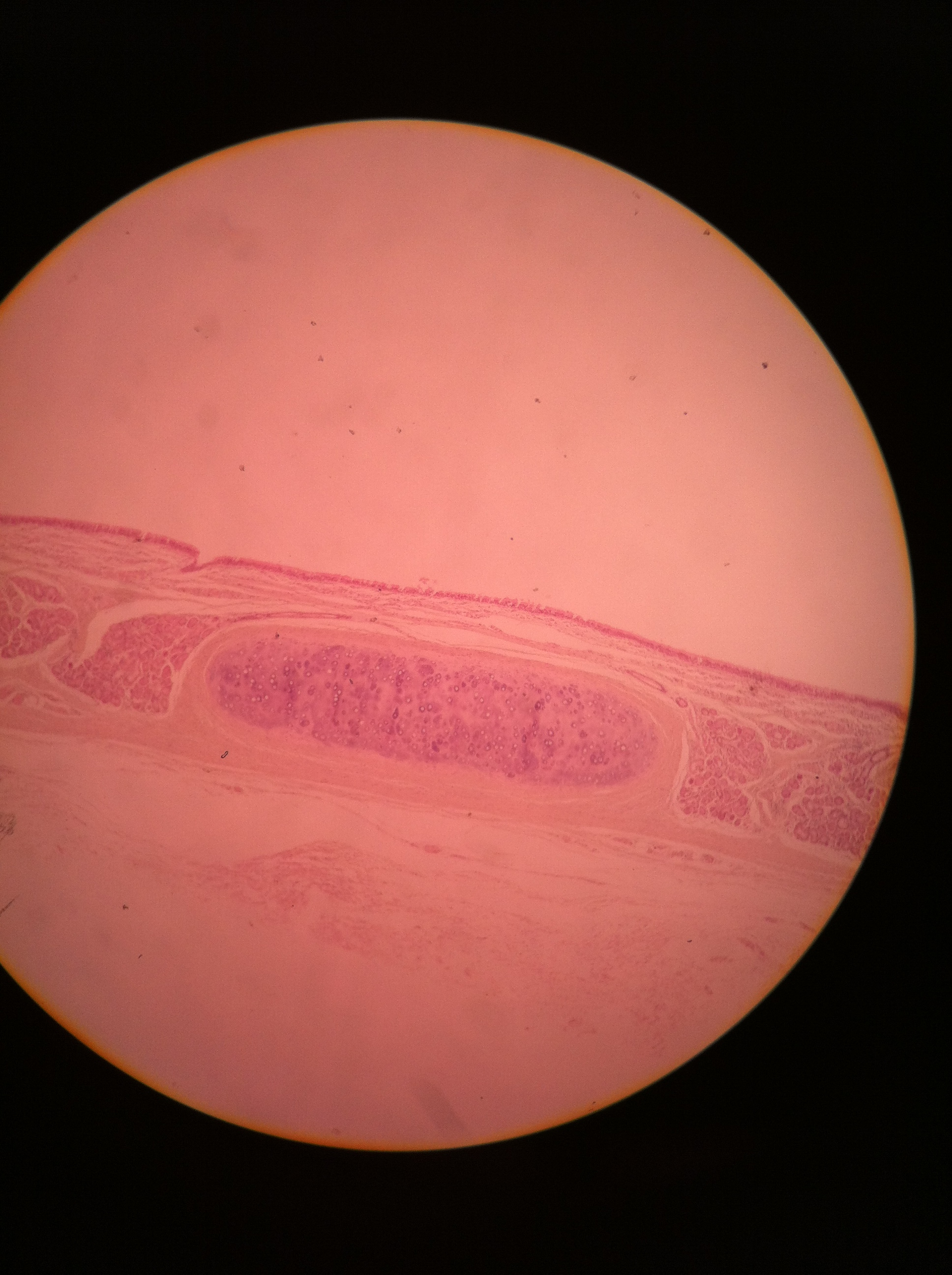 Hyaline cartilage (trachea), 100X