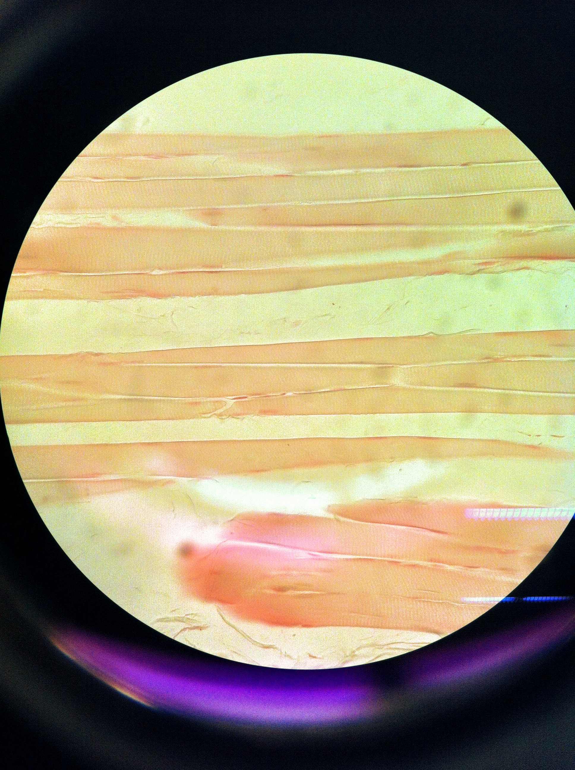 skeletal muscle (ls) Total Mag: 400X