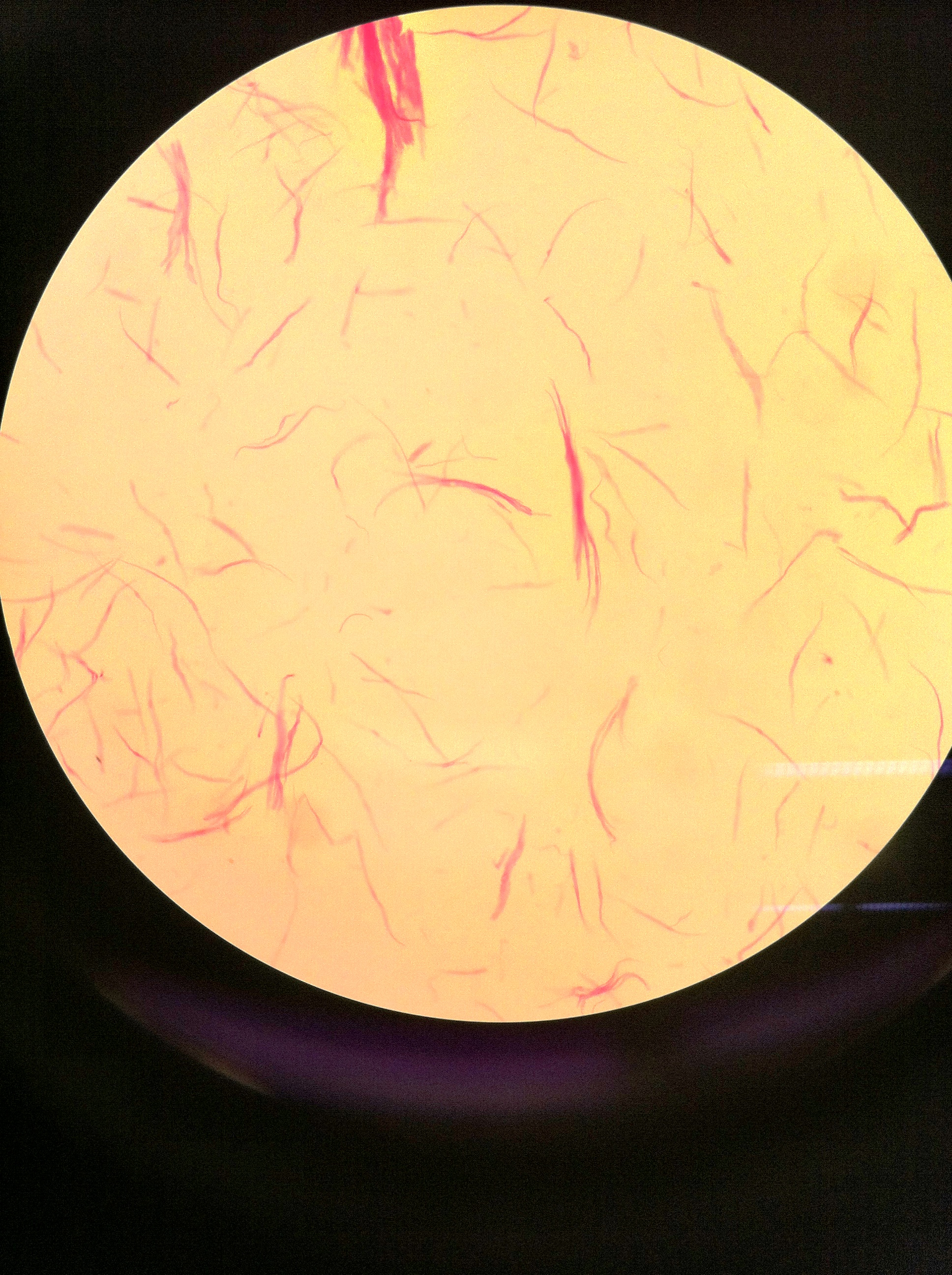 smooth muscle (teased), 100X