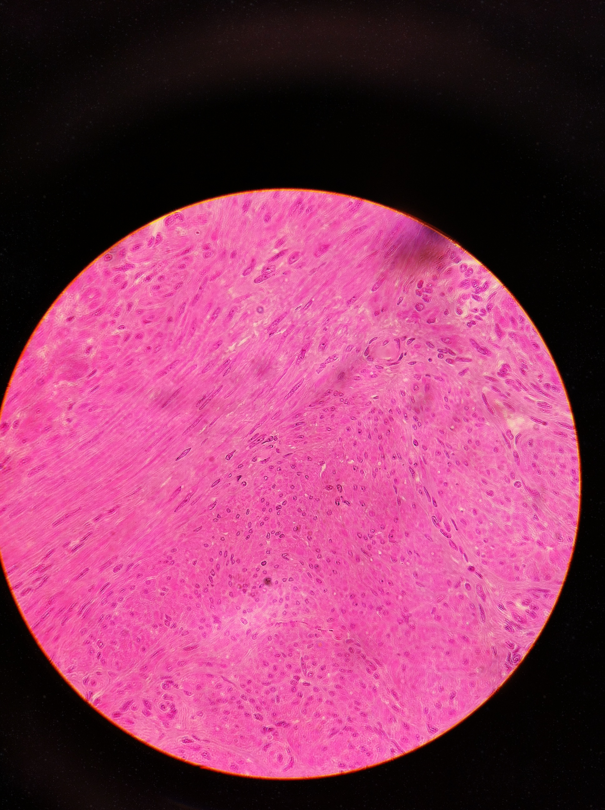 smooth muscle 400X