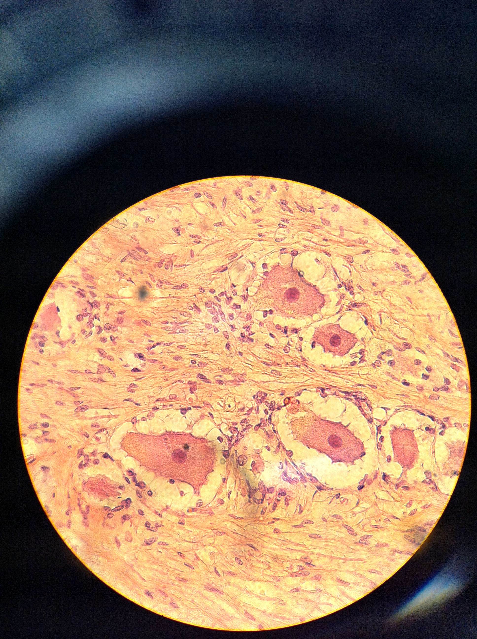 Dorsal Root Ganglion 400X