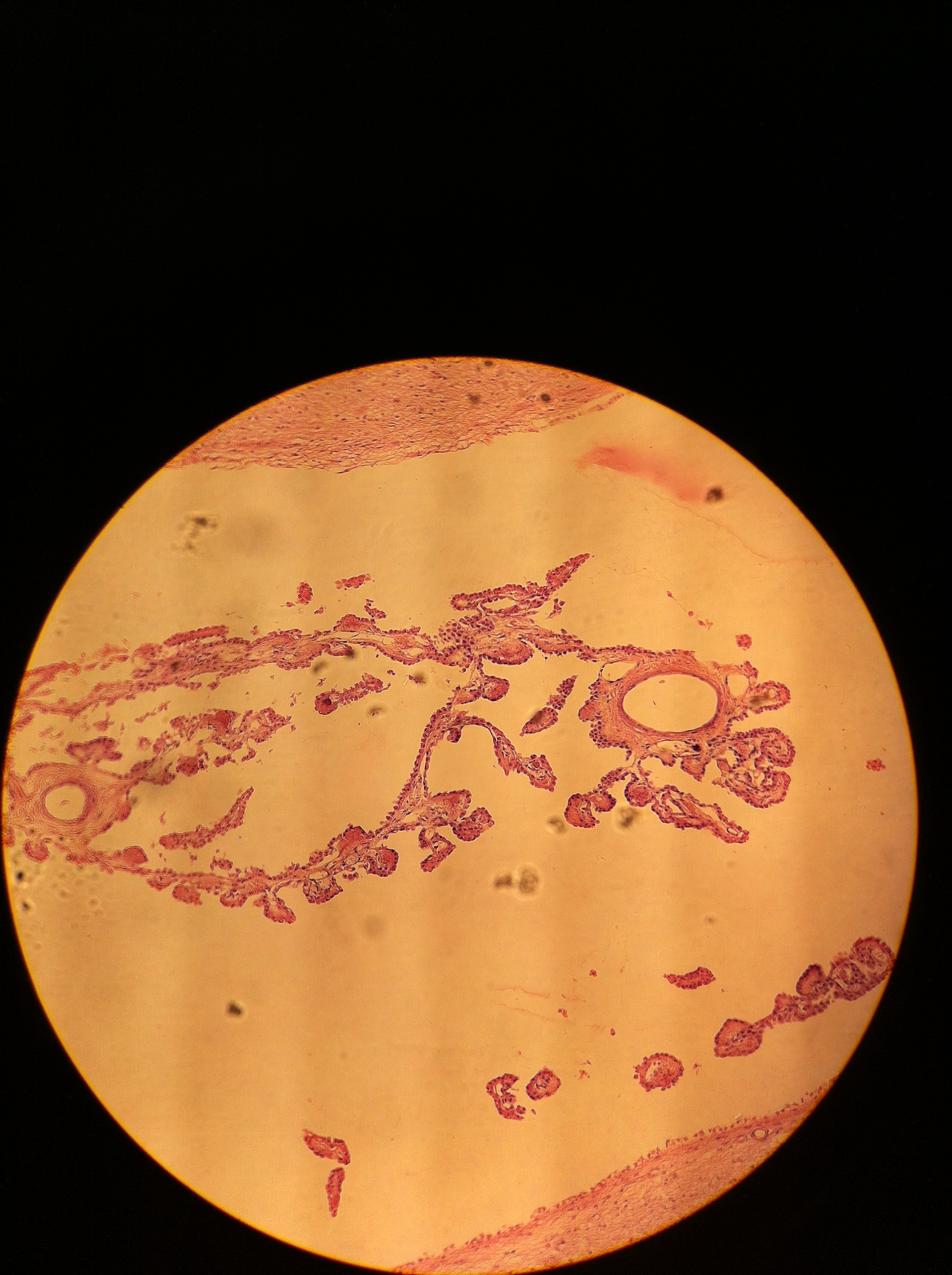 Ependymal Cells 100X