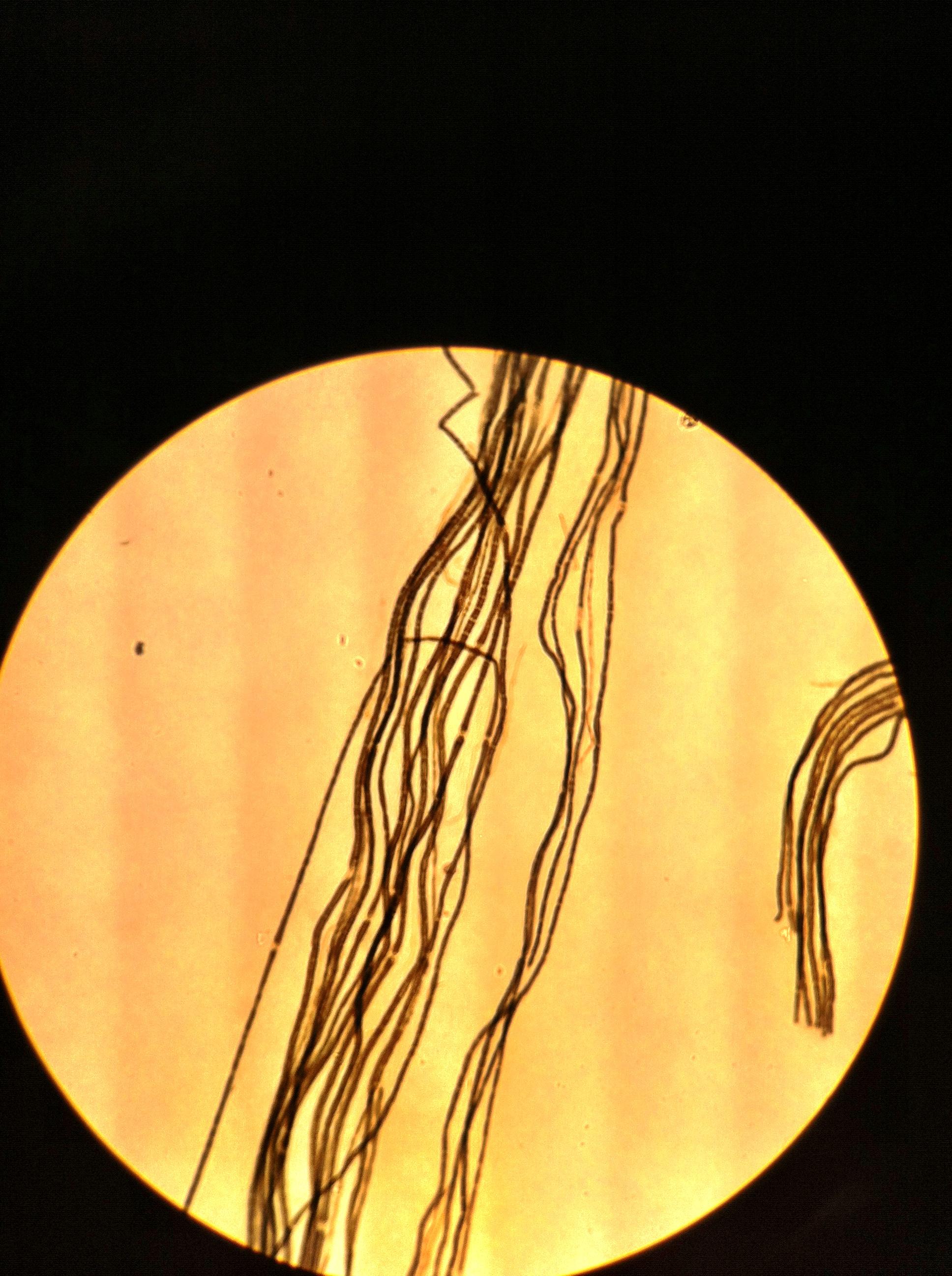 Myelinated Neruron 100X