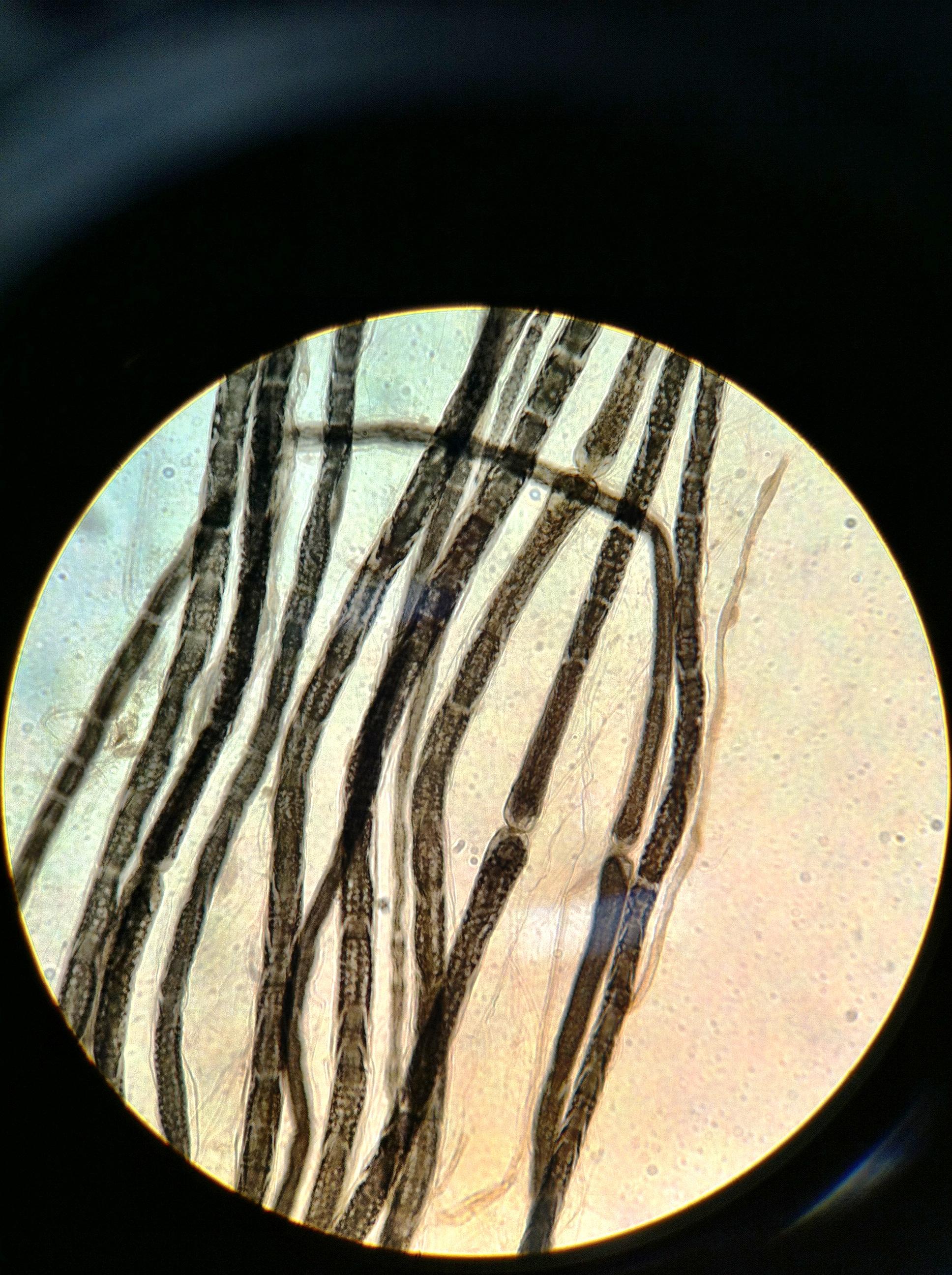 Myelinated Neuron 400X