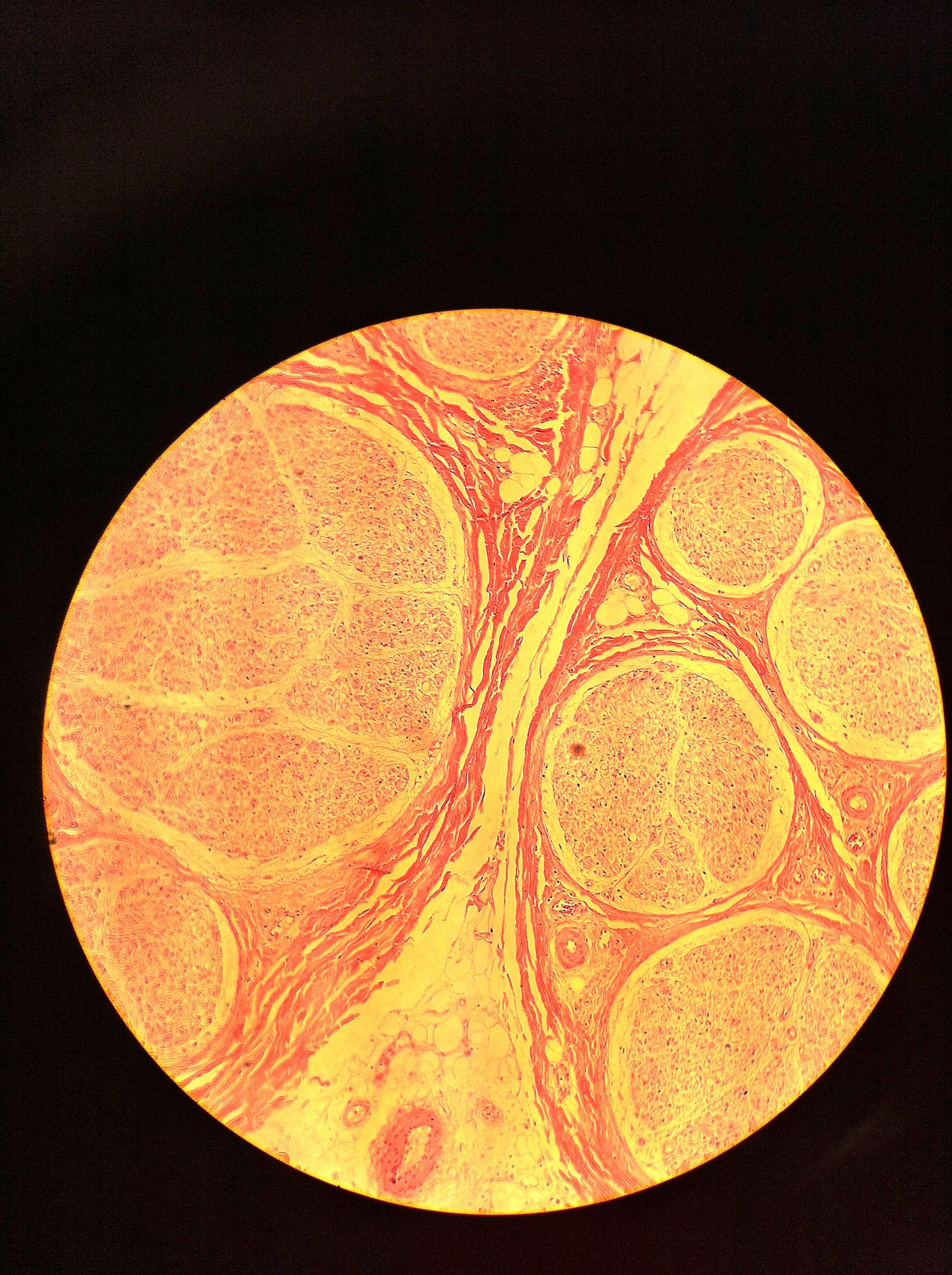 Neuron (cs) 100X