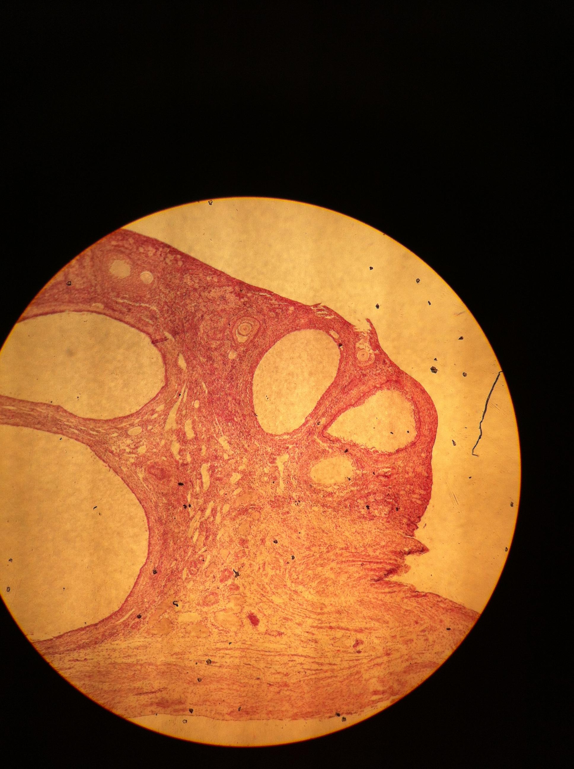 Ovary 40X