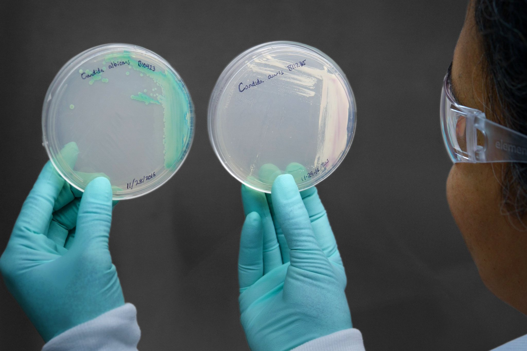 A  petri dish of cultured Candida auris, right. When Ms. Spoor's infection  didn't respond to anti-fungal medications, she was told to get her  affairs in order. Credit: Centers for Disease Control and Prevention