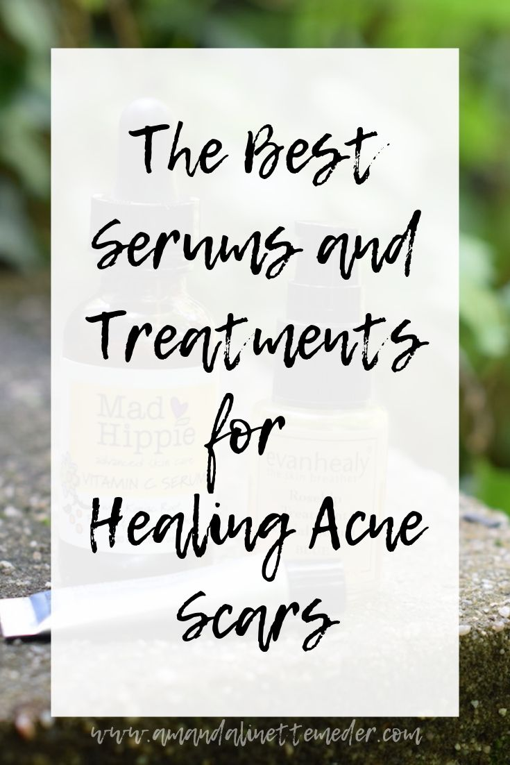 Article: The Best Serums and Treatments for Healing Acne Scars