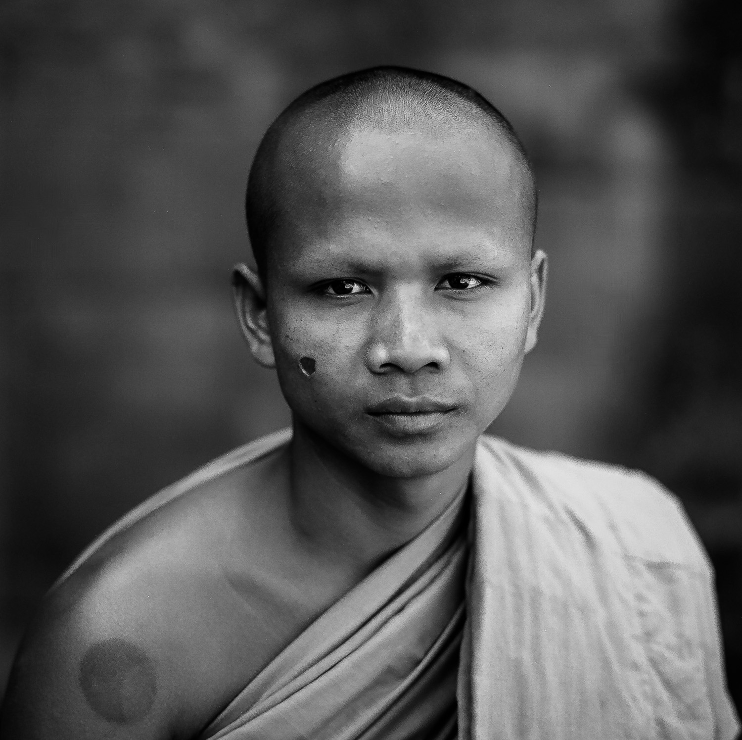 A formal portrait of a    monk    at the    Bayon    in the    Angkor Wat    complex near    Siem Reap, Cambodia   . The scare on his face is the result of being    tortured   , with a cigarette, by the    Khmer Rouge    when he was a child.