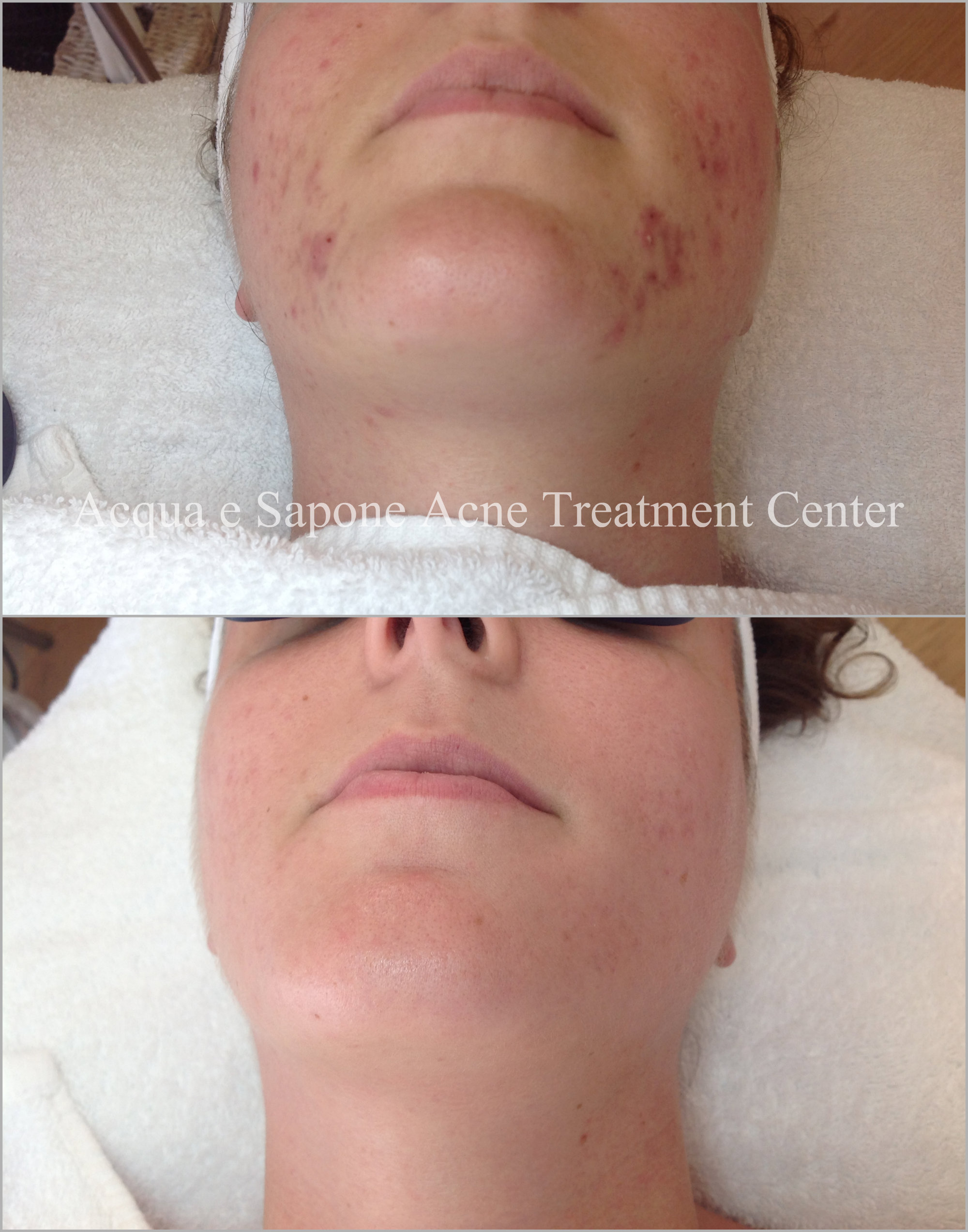 Dark marks from acne caused by Post-Inflammatory Hyperpigmentation treated with customized  Acqua e Sapone products  and  peels .
