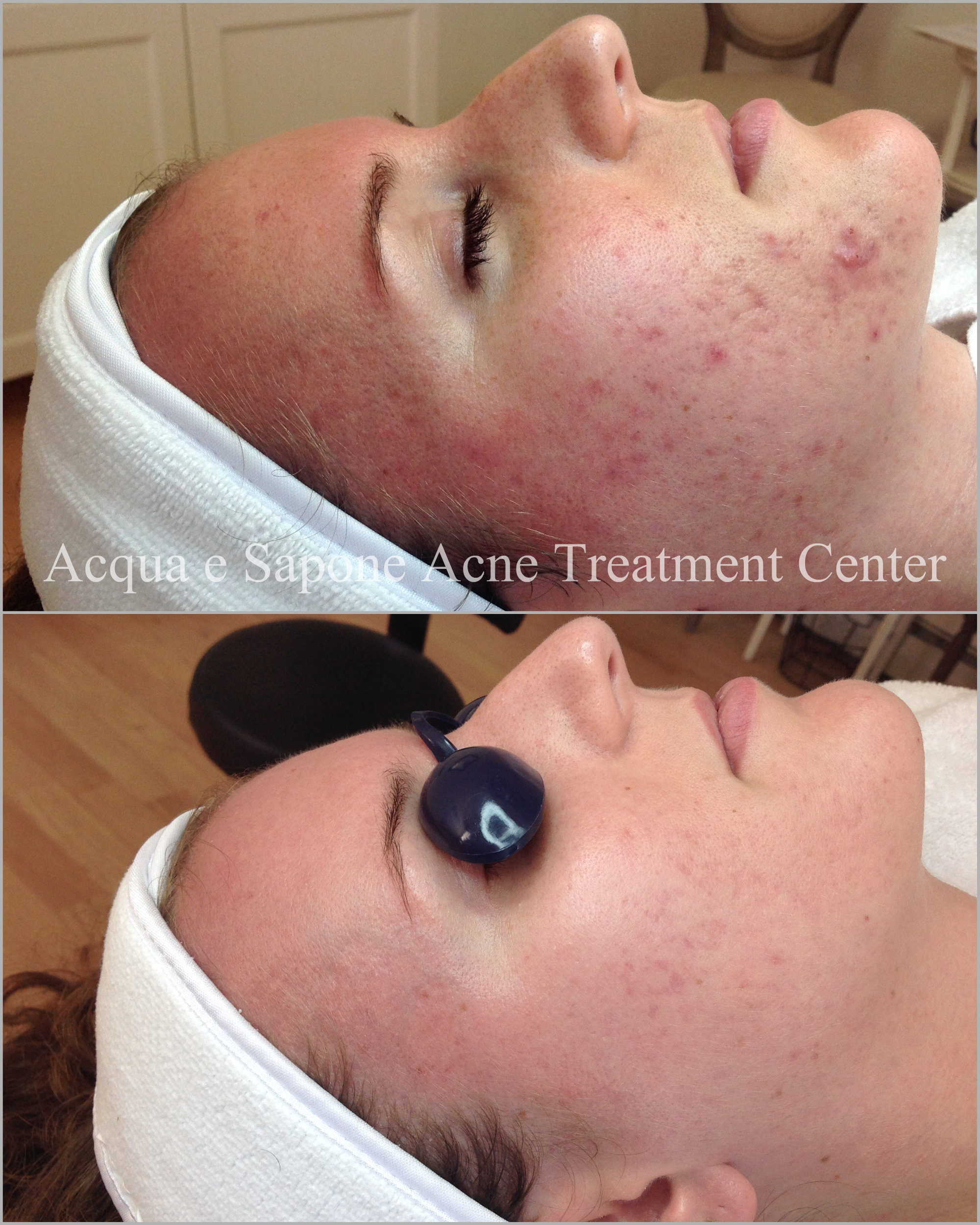 After 6  acne facial treatments  and a series of 3 depigmentation  chemical peels .