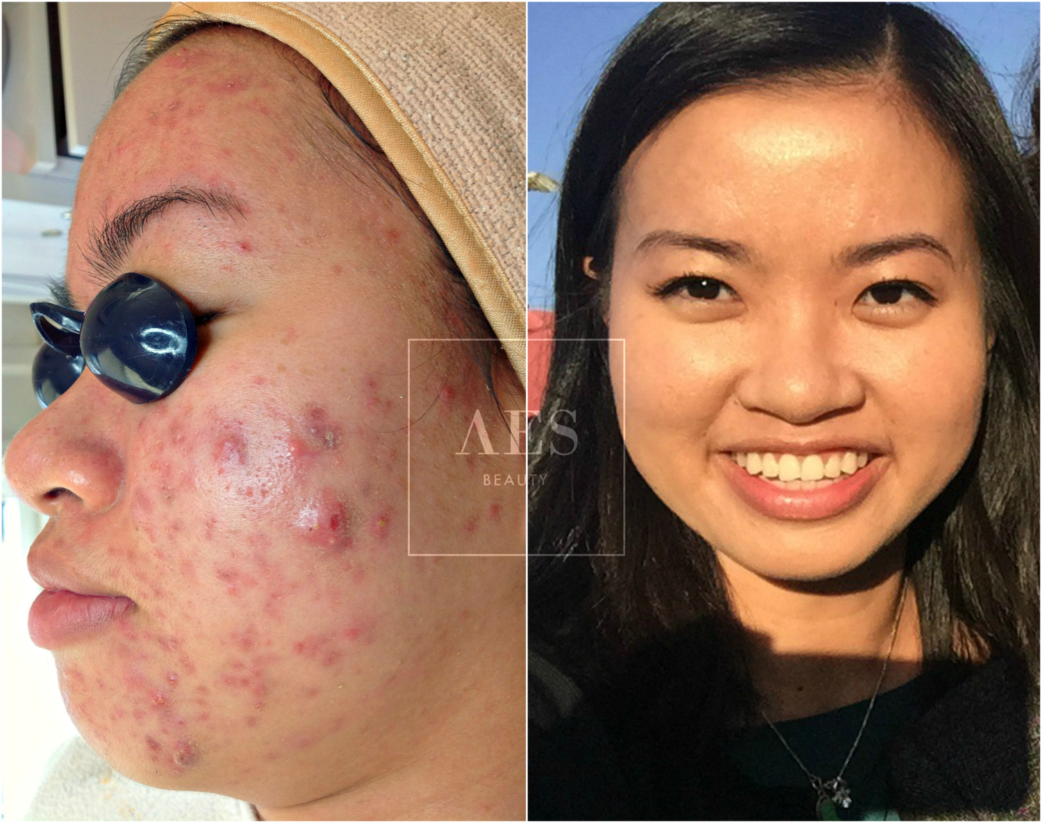 Results+from+the+AES+acne+clearing+program.png