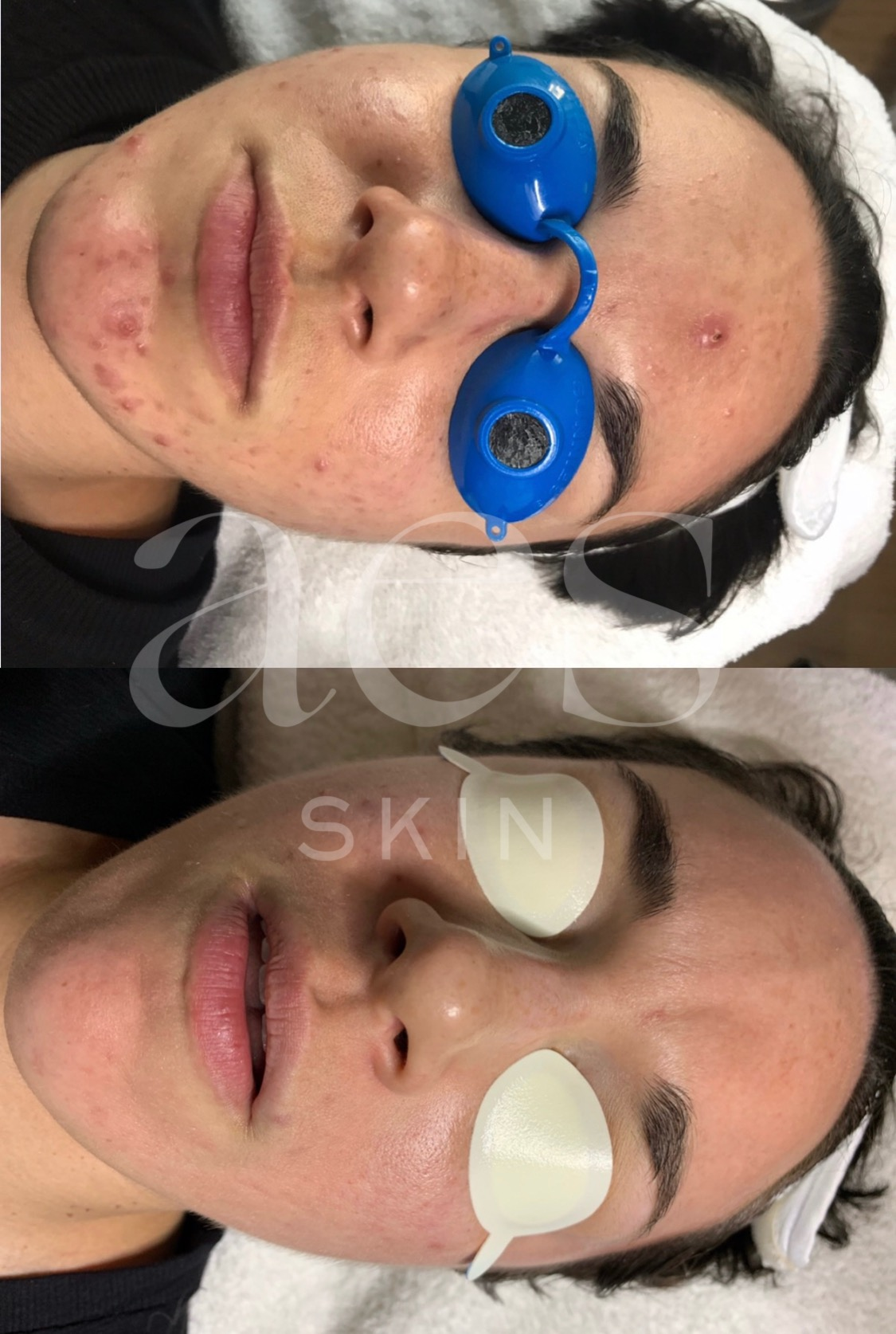 AES Acne Clinic | Acne Transformations
