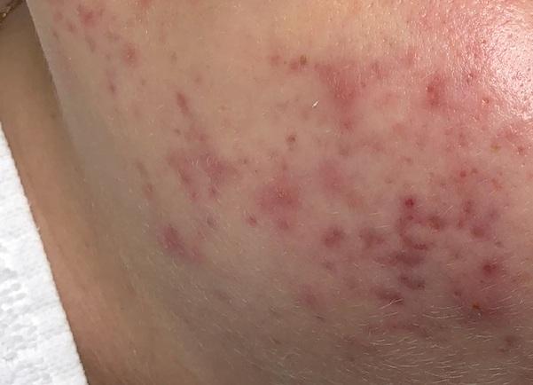 Postinflammatory erythema