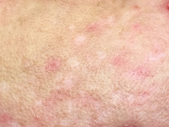 Postinflammatory hypopigmentation