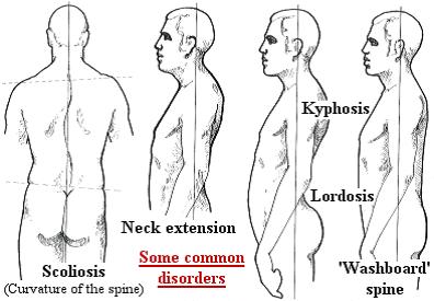 distorsion posture.png