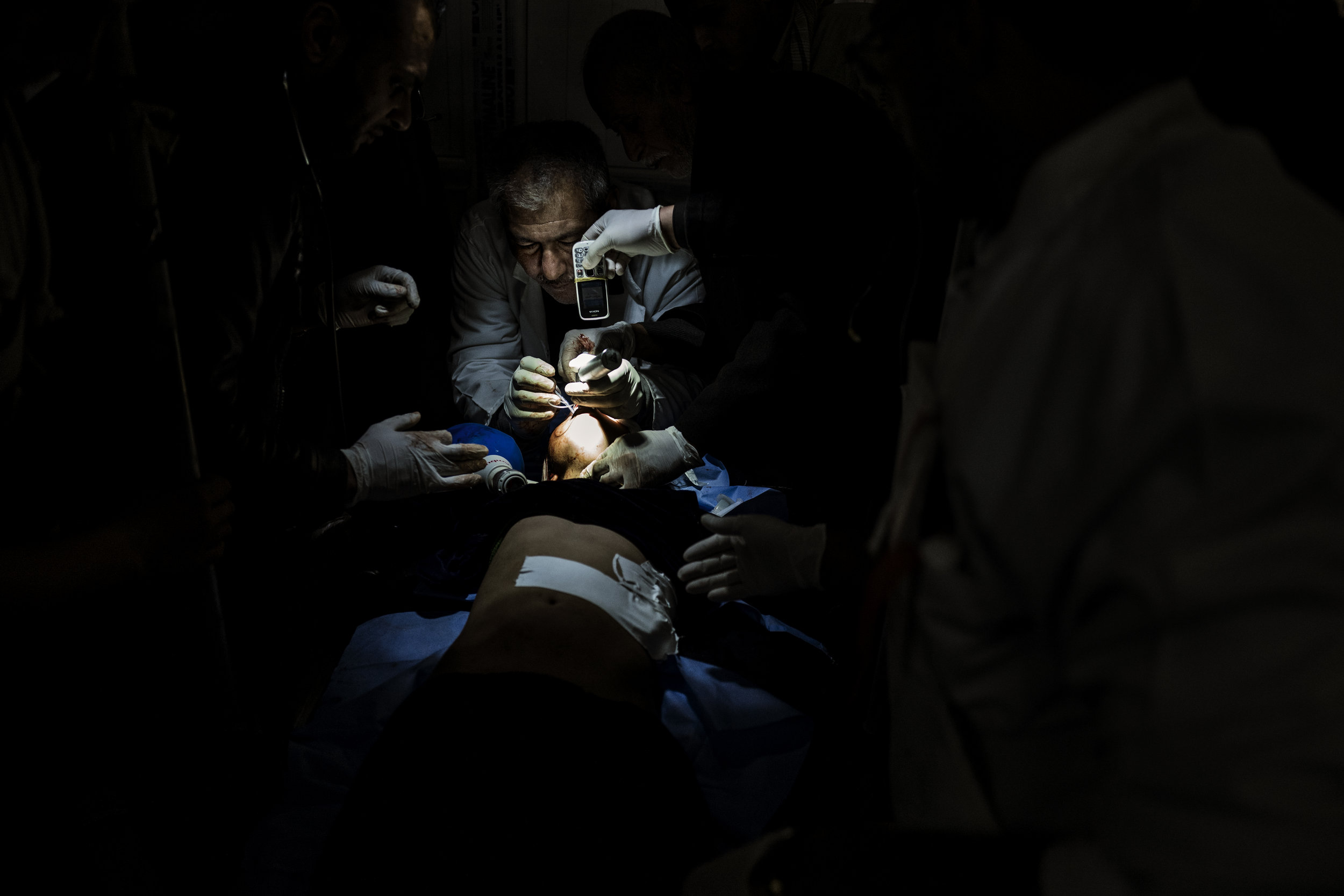 Doctors trying to save the life of a girl, hit by an ISIS mortar, by the light of a mobile phone.