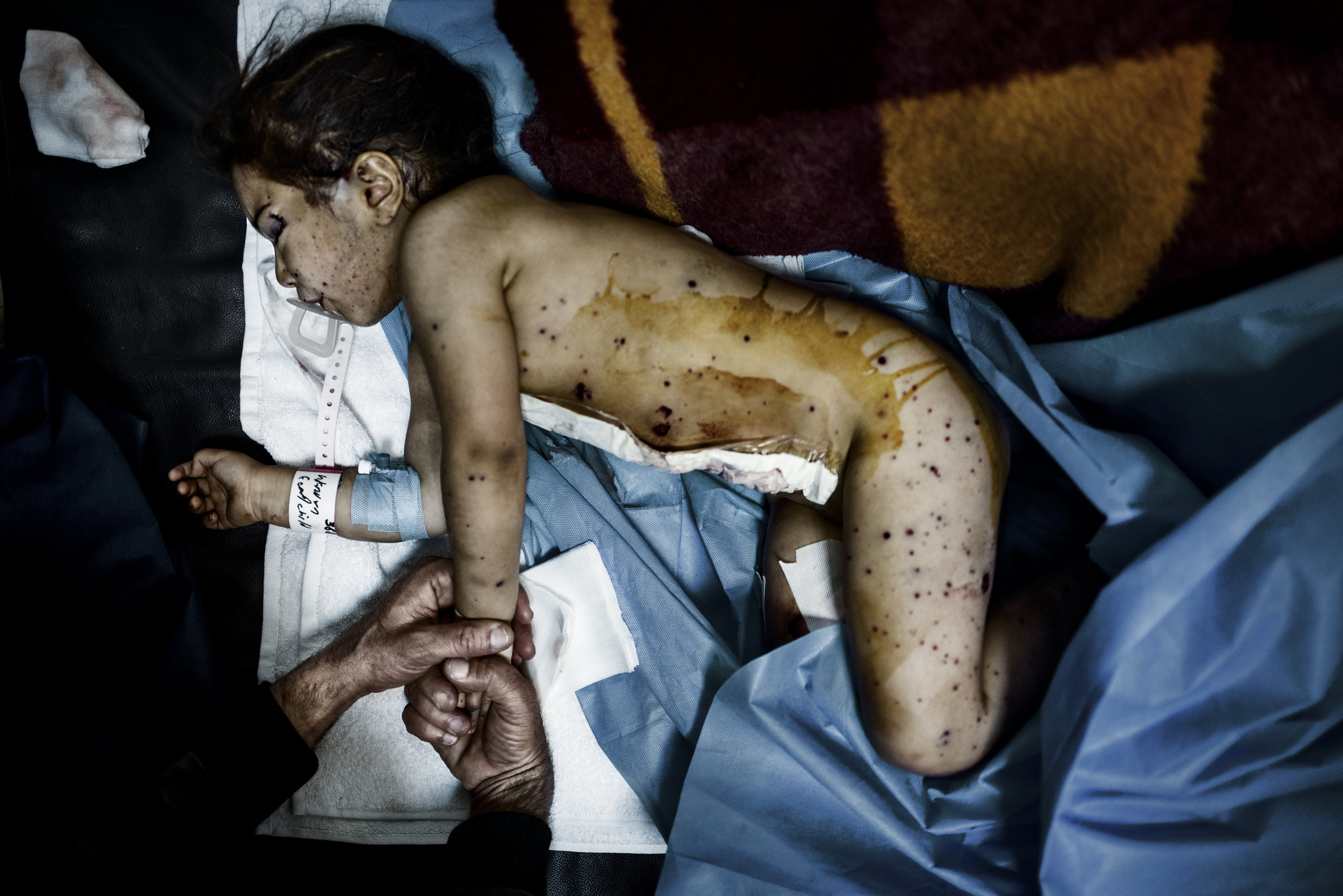 Three year old Narin's body is riddled with shrapnel. She's in a hospital bed at a hospital in the outskirts of the Kurdish captial Erbil, a couple of hours drive from Mosul. The day before she was struck by an ISIS mortar. The doctors believe Narin will survive, although they can't remove a piece of grenade, that's still lodged in her brain.