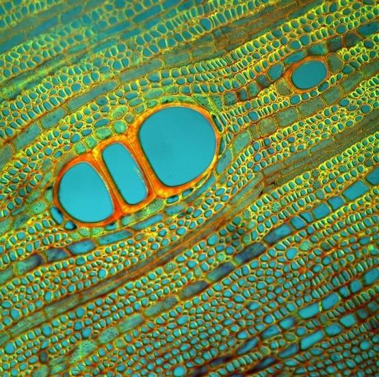 Diospyrus Lotus, by Fernan Federici. Source: http://www.featherofme.com/fernan-federici-microscopic-photographs-of-plants/