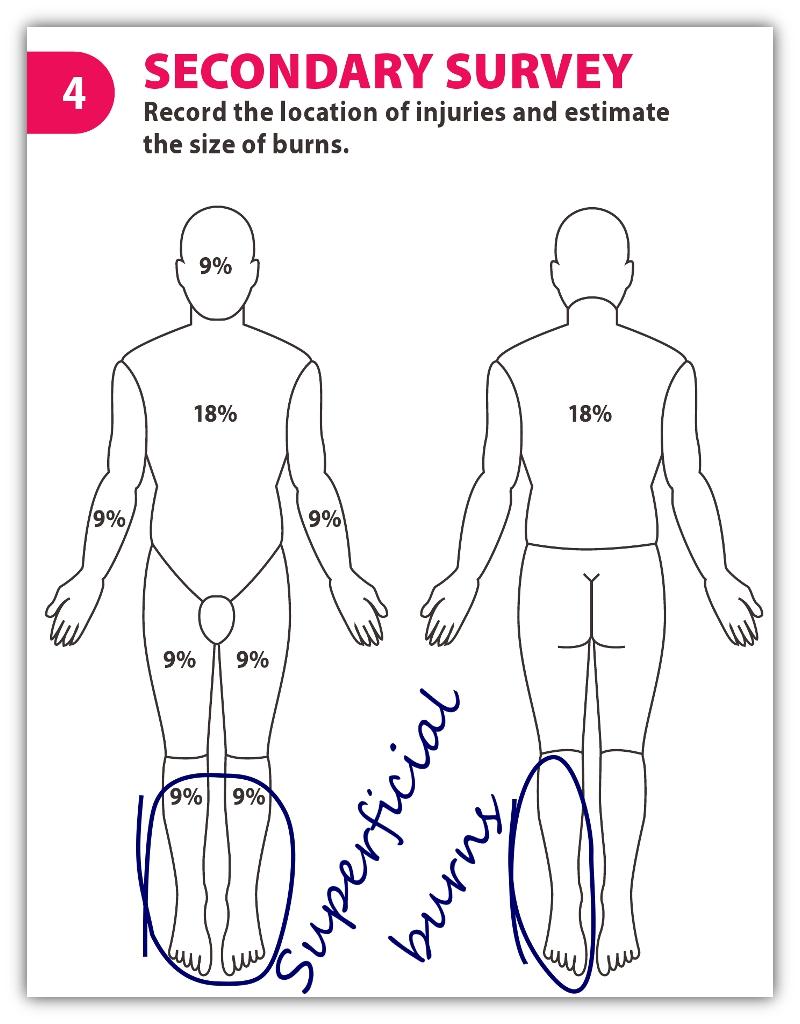 4 Secondary Survey.jpg