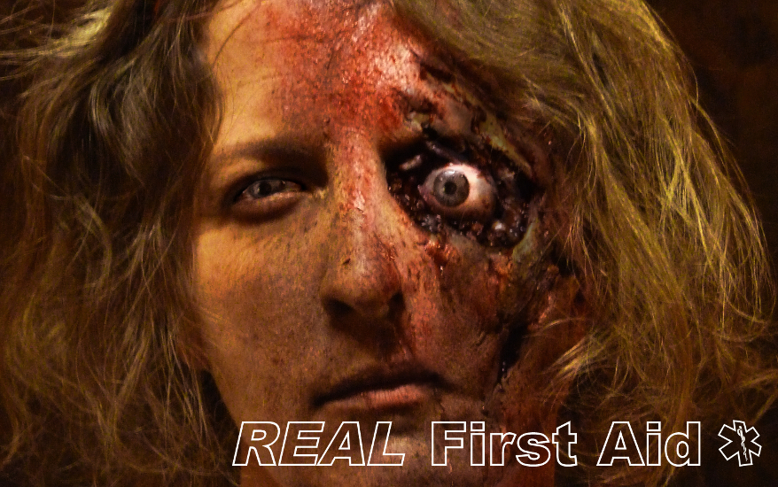 Facial Injury.JPG
