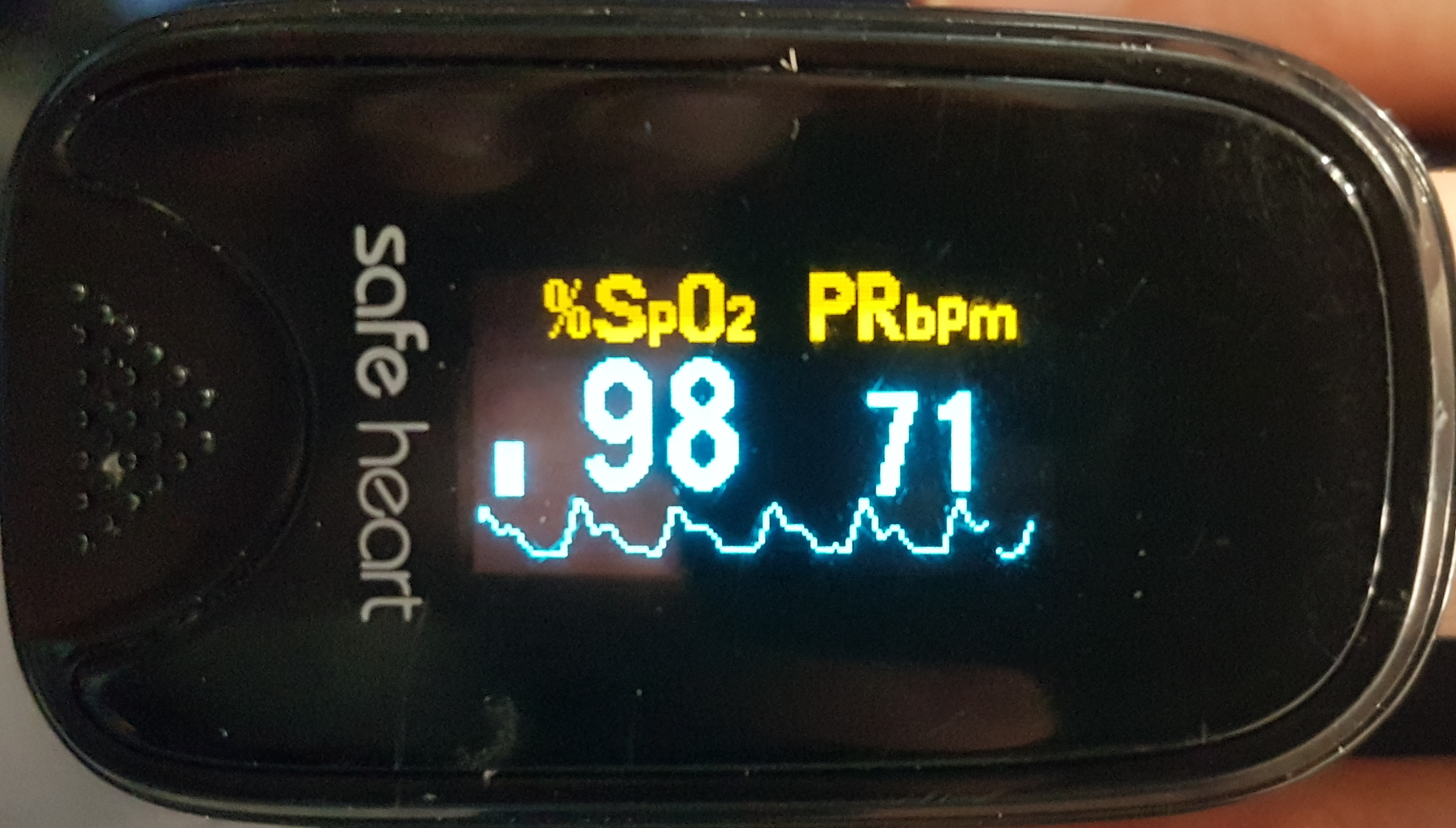 Strong waveform with good dicrotic notch indicating good pulse pressure and perfusion.