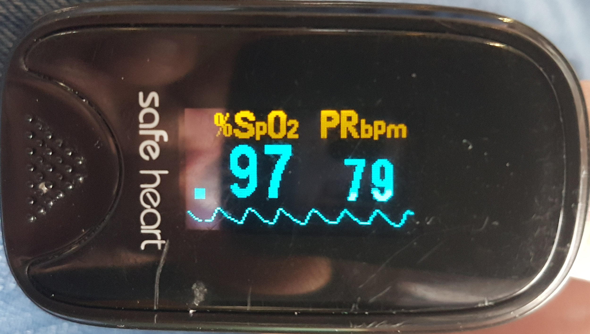 Strong pulse pressure but without an obvious dicrotic notch indicating good pulse pressure and perfusion but increased arterial resistance.