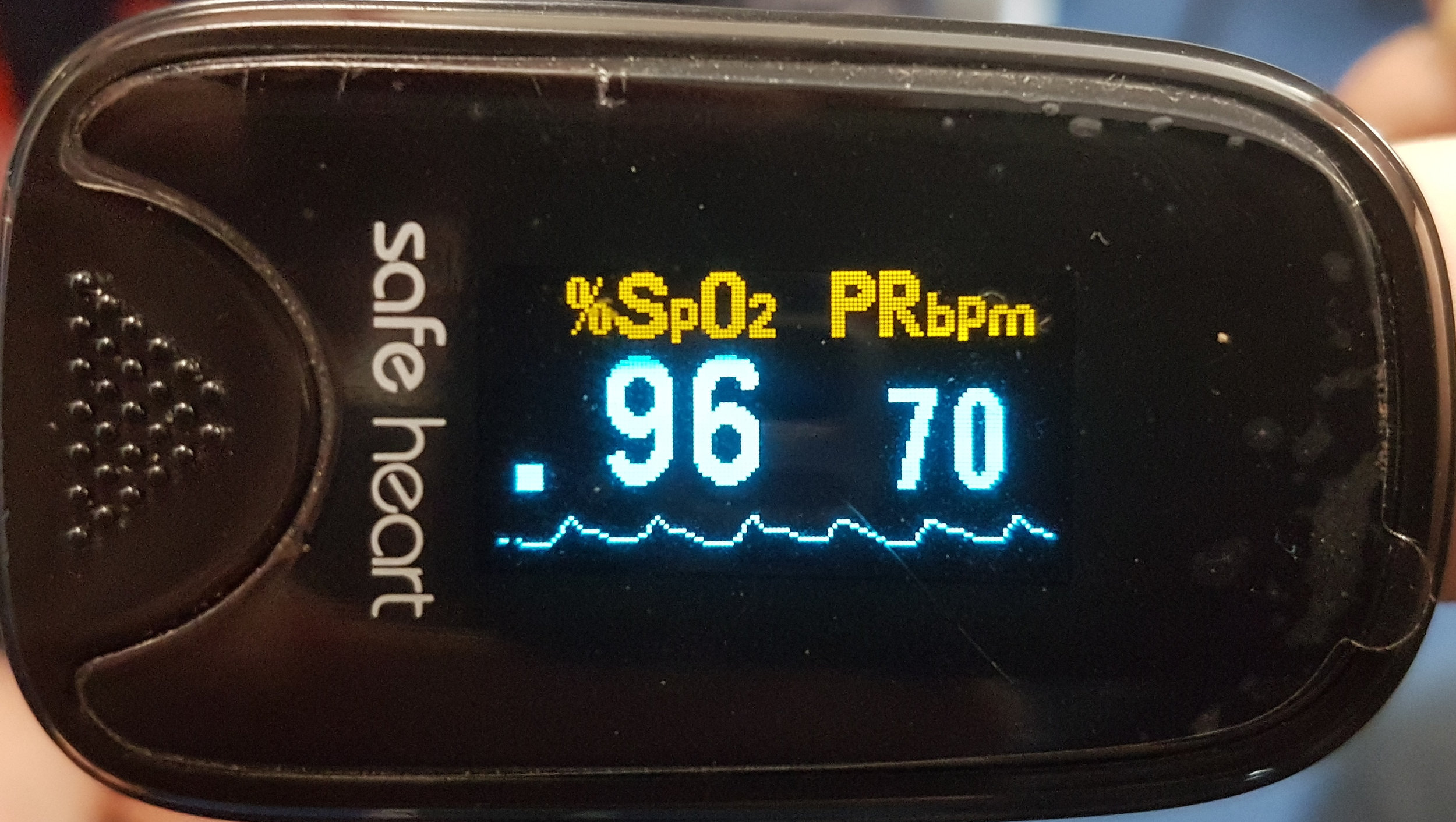 Weaker waveform but with noticeable dicrotic notch indicating lower blood pressure but normal vascular resistance.