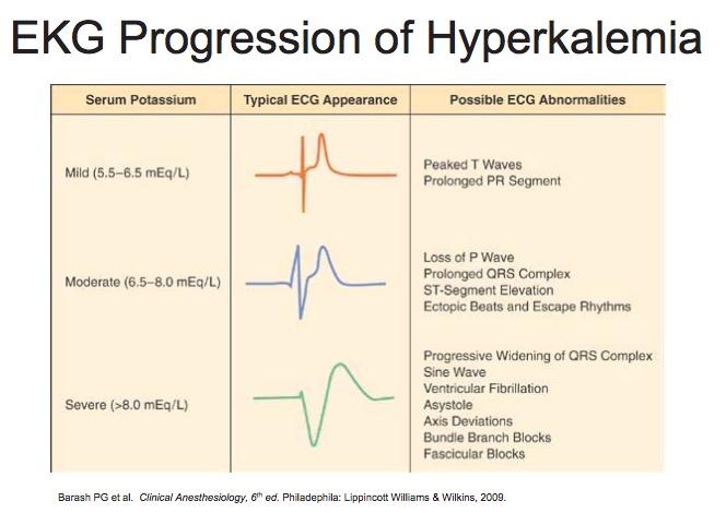 ECG Hyperkalemia.jpg